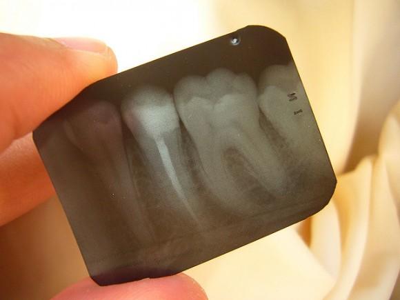 歯医者での子供のフッ素塗布